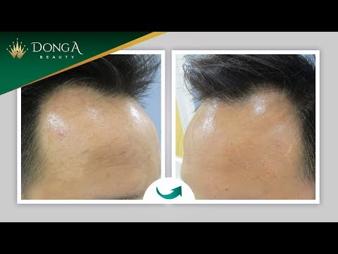 Cận cảnh Cấy tóc tự thân FUE cho nam giới bị hói cấp độ 2