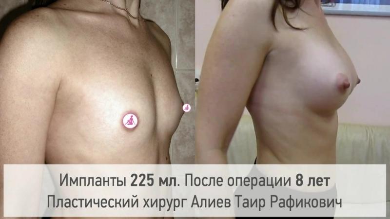 Увеличение груди. Через 8 лет. Результат операции. Хирург Алиев Таир Рафикович