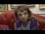 Страдает от нервной анорексии в 26 лет