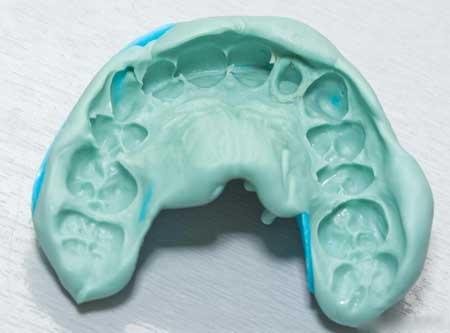 Стоматологи производят оттиски зубов, чтобы соответствовать винирам.