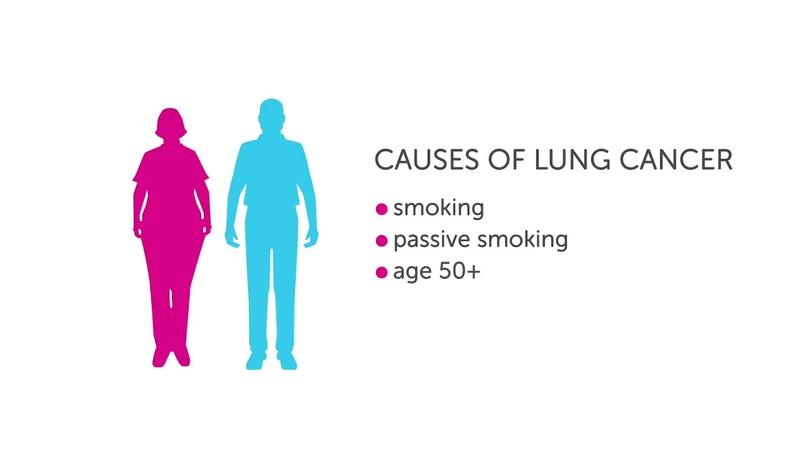 Ung thư phổi là gì dấu hiệu ung thư phổi - Nhà Thuốc Võ Lan Phương
