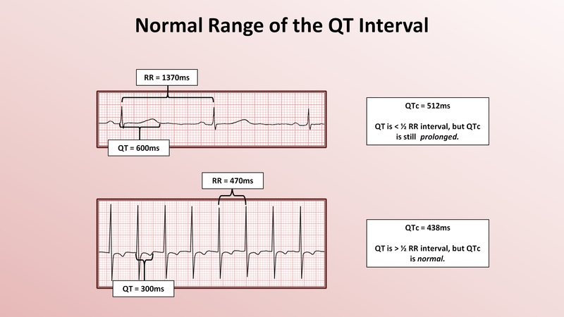 22. Advanced EKGs - The QT Interval and Long QT Syndrome