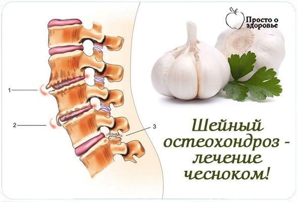 Лечение шейного остеохондроза в домашних условиях быстро отзывы 254