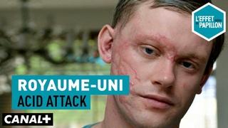 Royaume-Uni : Acid attack - L'Effet Papillon — CANAL+
