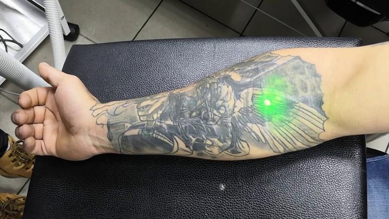 24 Исправляем татуировку лазером
