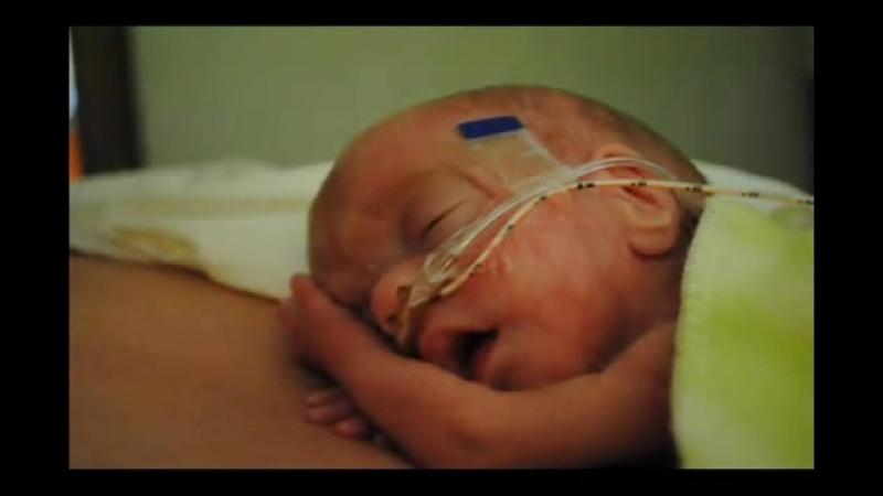 Эта малышка родилась на 15 неделе (3 месяца). Это небольшой фильм о чуде. Вот та