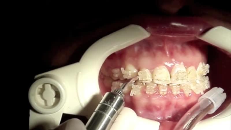 Laser debonding of brackets. Ортодонтия.