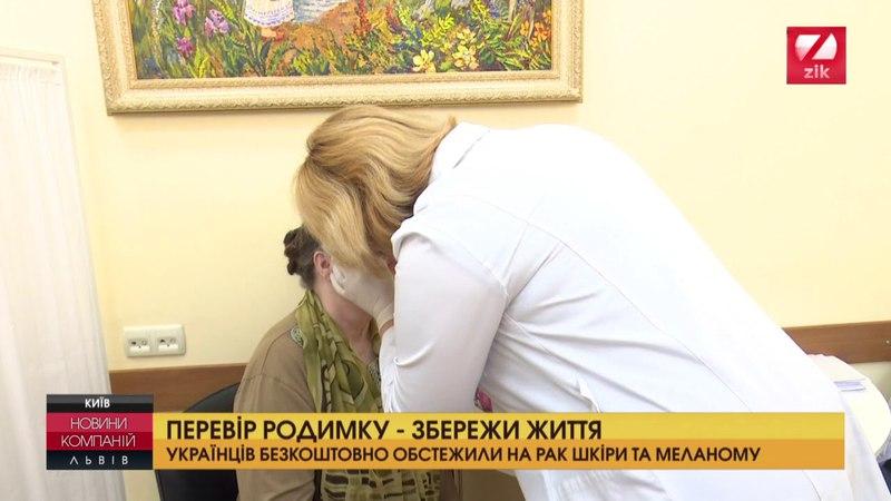 Українців безкоштовно обстежили на рак шкіри та меланому