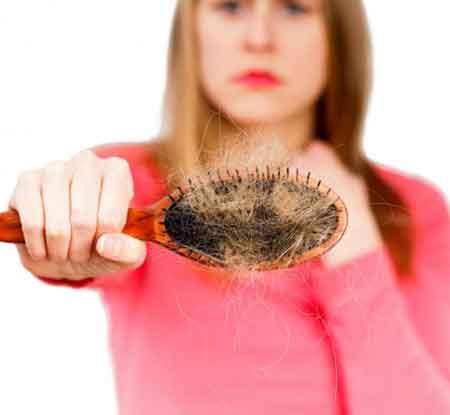 Андрогенная алопеция у женщин приводит к выпадению волос по всей голове.