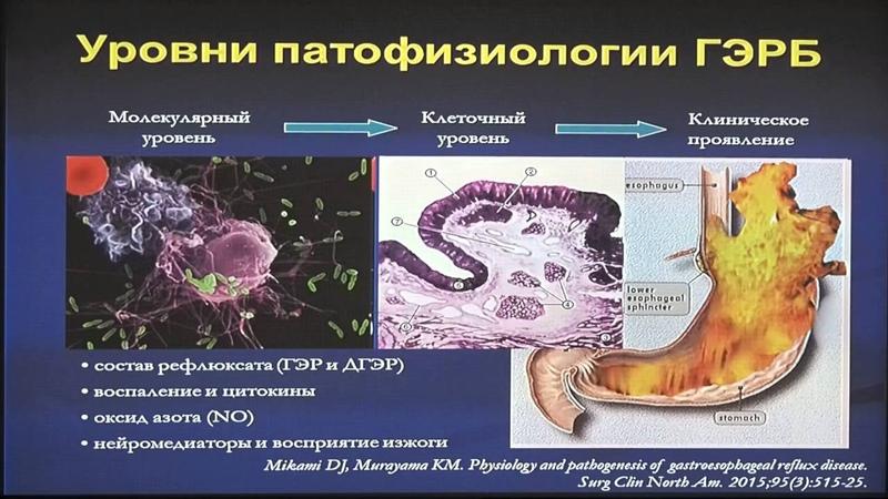 30Маев ИВ Факторы агрессии и защиты слизистой пищевода в патогенезе ГЭРБ
