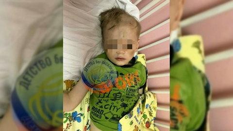 Вести.Ru: Избила мне глазки: в Петербурге мать искусала детей за переедание