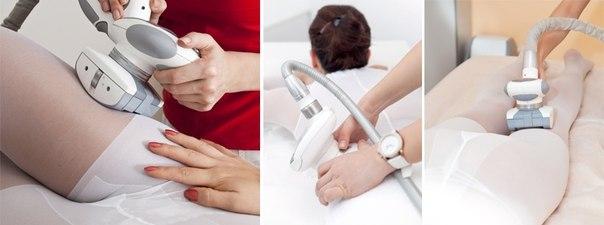 При отверстие ли уретры простатите может склеиваться