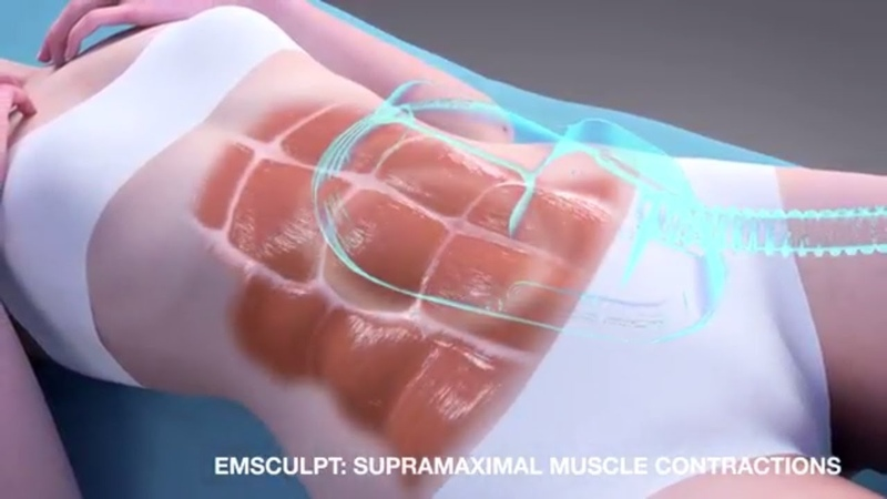 Emsculpt MOA for muscle toning and body contouring