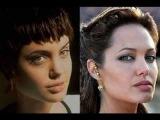 Голливудские звезды до и после пластической операции