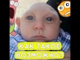 Этот мальчик родился без мозга!