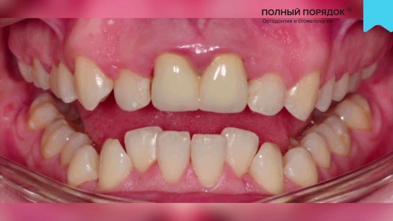 Видео 114 Результаты лечения брекетами с коронками на передних зубах Брекеты Damon Q