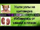 💊 Elev8 отзывы 📣 Камни в почках ✅, Узлы на щитовидной железе ✅.