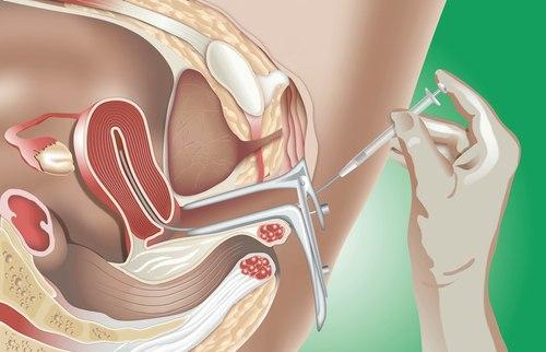 истечения спермы: