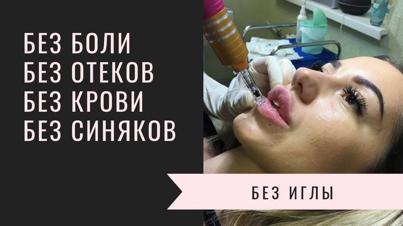 Hyaluron Pen! Прорыв в косметологии! Безинъекционное введение гиалуроновой кислоты!