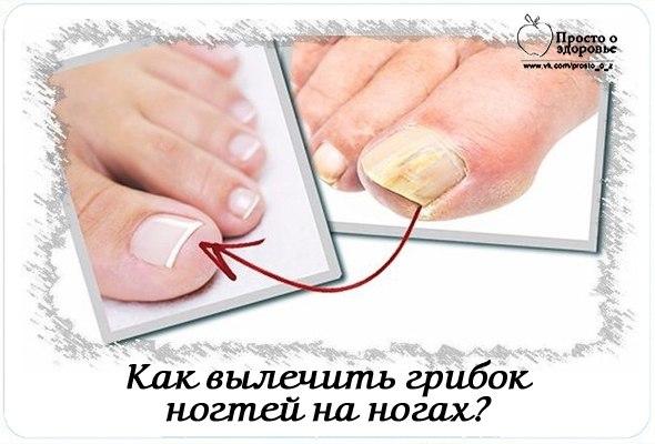 Грибок ногтя на ноге лечение в нижнем новгороде