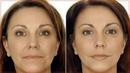Антивозрастной стик для кожи лица Maxclinic lifting stick.