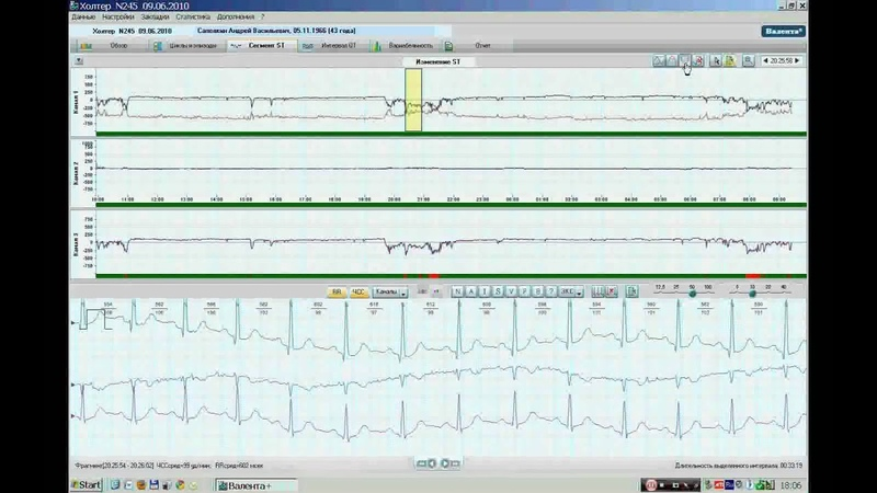 Анализ сегмента ST.WMV