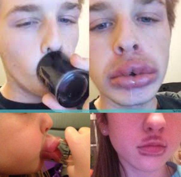 Большие губы от стакана