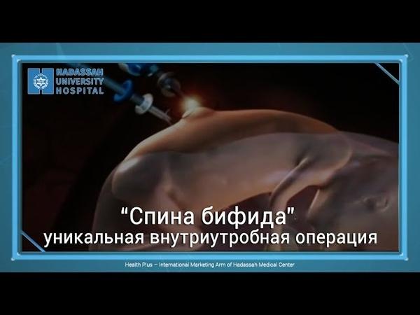 """""""Спина бифида"""" - уникальная внутриутробная операция"""