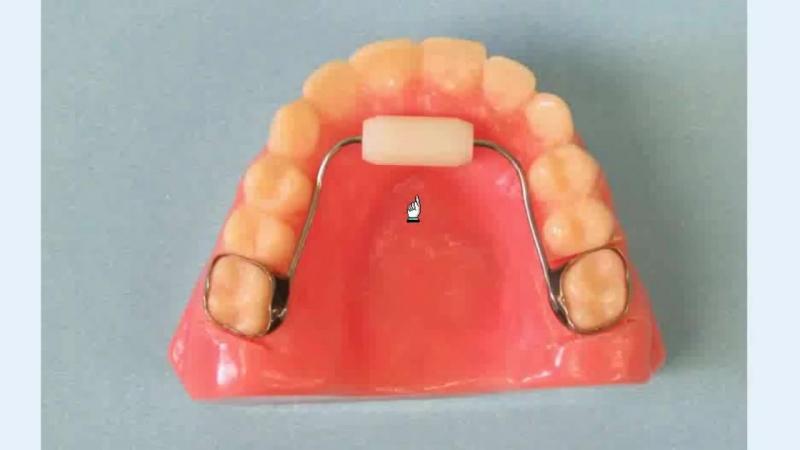 Habit Appliance Labs. Ортодонтия.