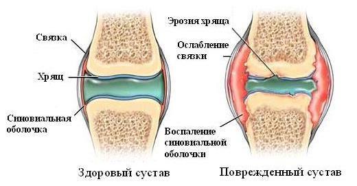 лечение артрита коленного сустава в домашних условиях