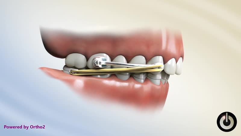 Carriere Motion™ Ортодонтия.