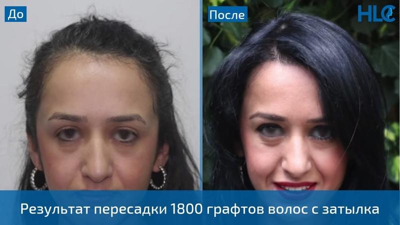 Пересадка 1800 графтов волос женщине на переднюю линию роста волос