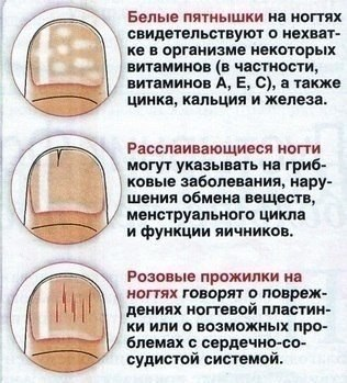 https://pp.vk.me/c635102/v635102522/23cb/FsZhOqqd0eA.jpg