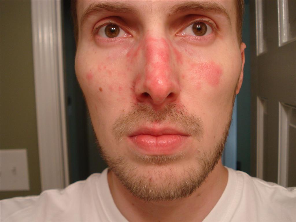 Причина себорейного дерматита
