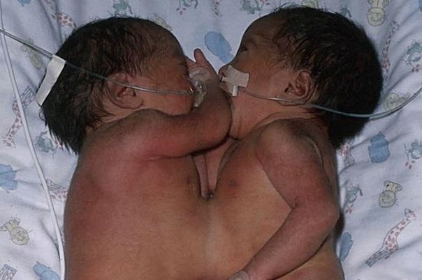 У них почти не было шансов Их разделили в возрасте шести недель. Это была очень рискованная операция. На днях красавицы Джаннат и Зайнаб Рахман, которые живут в Великобритании, отпраздновали