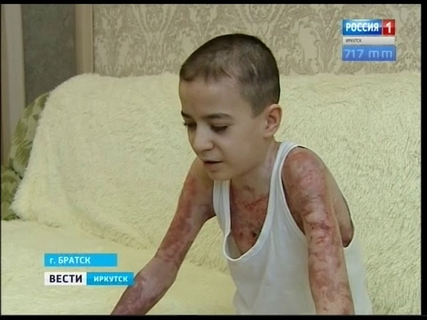 Заново учится сидеть и ходить Выживший после ожога 80% тела мальчик готовится к новым операциям