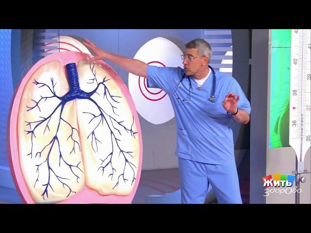 Жить здорово! Пневмония— откуда она берется?(27.07.2017)
