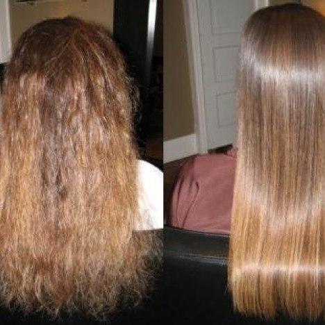 Почему от булимии выпадают волосы