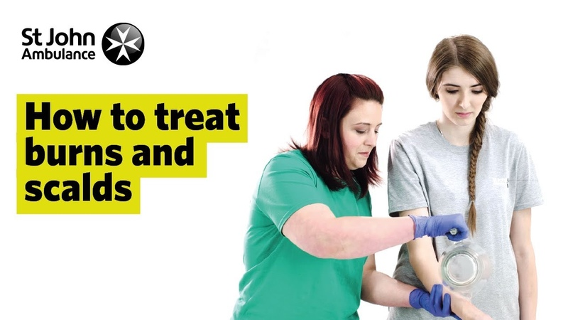 How to Treat Burns and Scalds - First Aid Training - St John Ambulance
