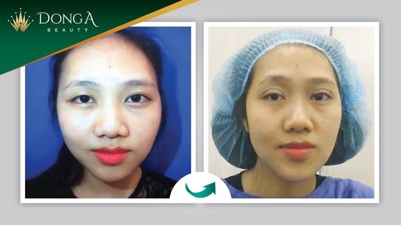 Kết quả Bấm mí mắt Hàn Quốc Dr Park tại Đông Á Beauty