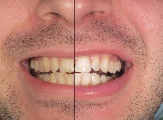 Отбеливание зубов smartbleach
