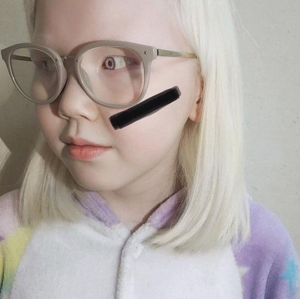 Прекрасная девочка-альбинос