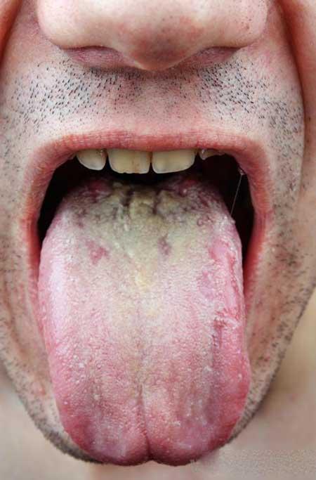 Дрожжевая инфекция может возникнуть во рту.