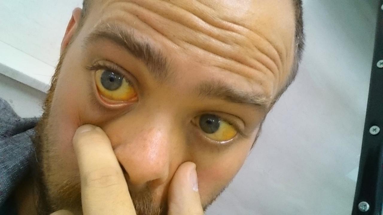 Взаимосвязь между гепатитом и желтухой