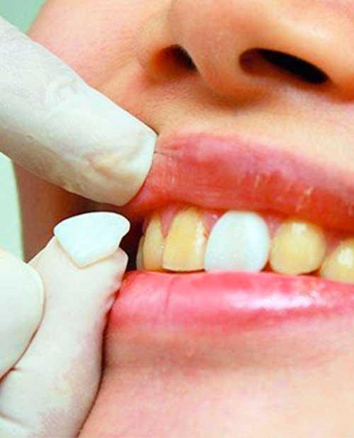 Что такое виниры для зубов?