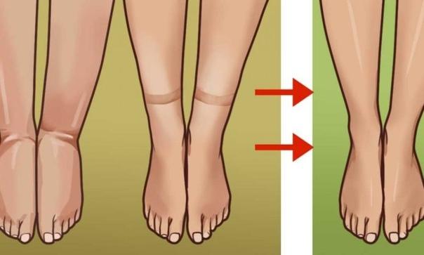 Отекают ноги: причины и лечение болезней
