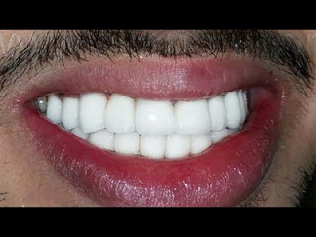 İSTER İNANIN İSTER İNANMAYIN 10 Dakikada Bembeyaz Dişlere Sahip Olun Süper Yöntem
