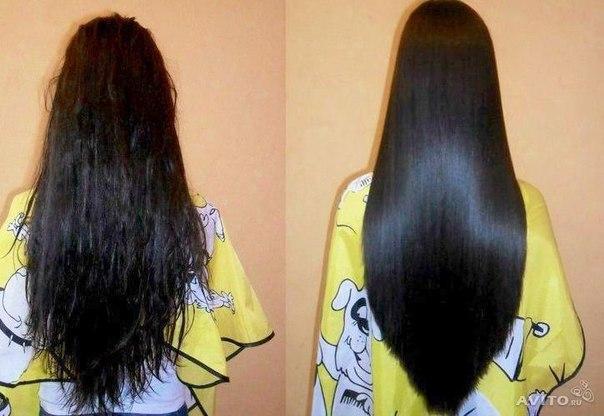 Постинор и выпадение волос