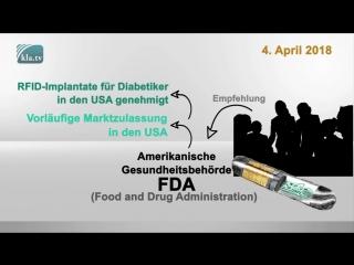 RFID-Implantate für Diabetiker – kommt der Chip bald für alle