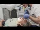 Снятие слепка для изготовления коронок на импланты